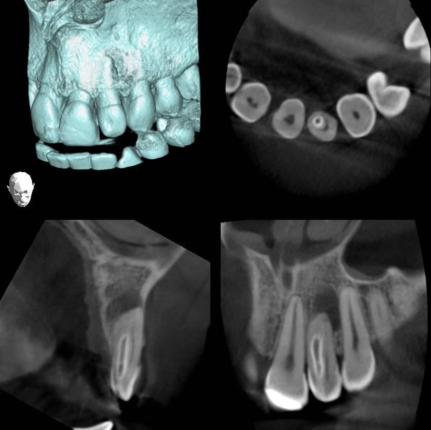 Asparagiinihappo racemization kuin dating työkalu dentiinin todellisuutta