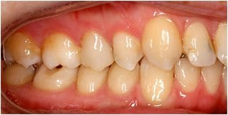 Fig. 2: Intraoral photo right – distocclusion by 1PB, retainer between 13 and 12 visible, 12 enamel aplasia