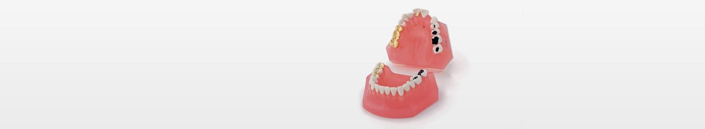 Caries and Dental Restorations Models