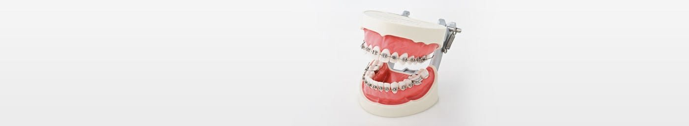 Orthodontics Models