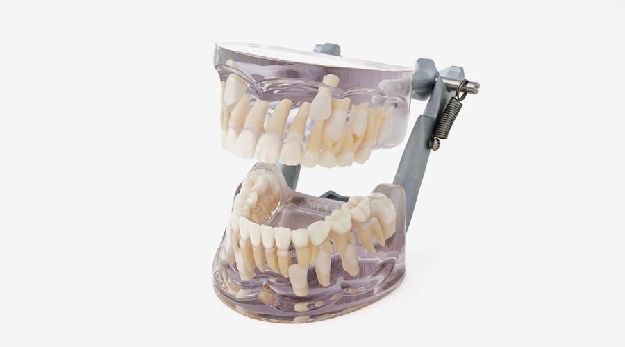 Modelos de estudio con dientes de leche   MORITA