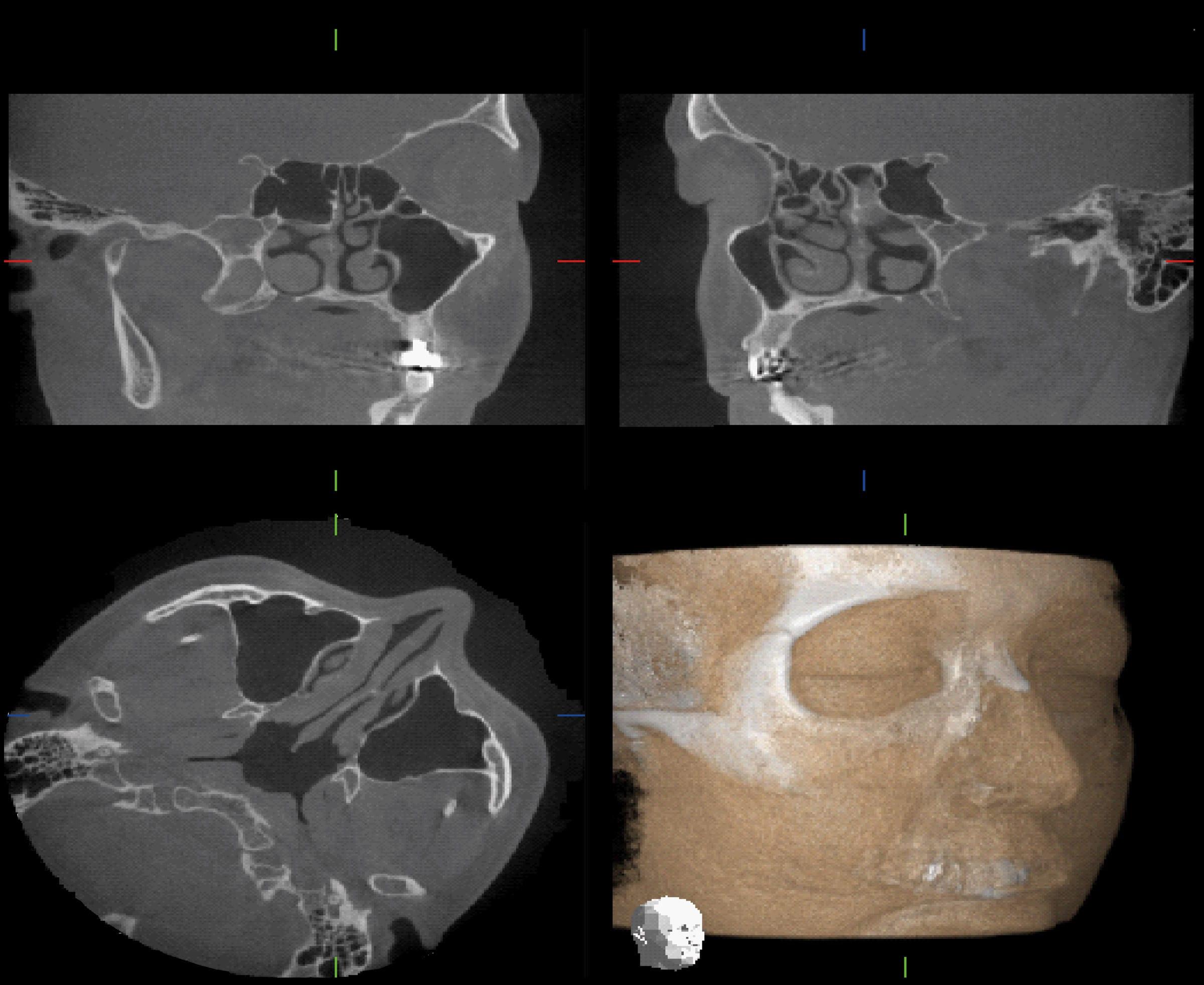 Vorteile der Digitalen Volumentomographie in der HNO-Heilkunde | MORITA